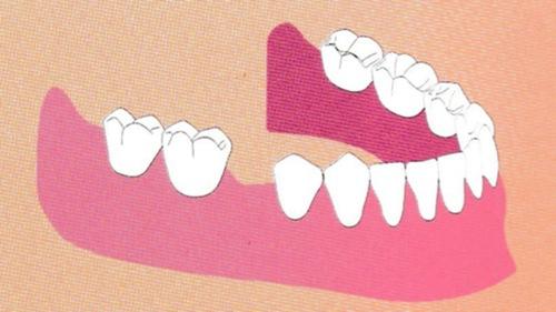 歯が抜けてしまいました。