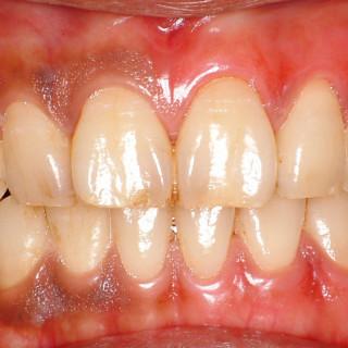 気になる歯ぐきの黒ずみ 歯科医院で簡単にピンク戻せます